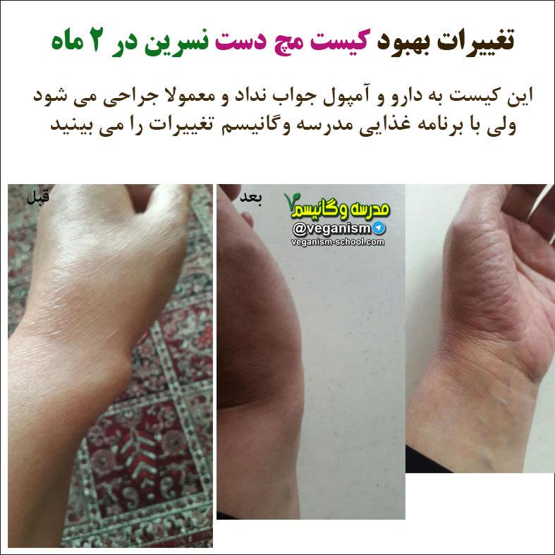 درمان کیست مچ دست با خام گیاهخواری
